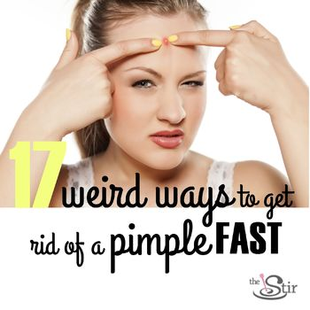 get rid of pimple
