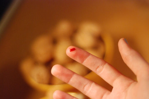 Blood on finger