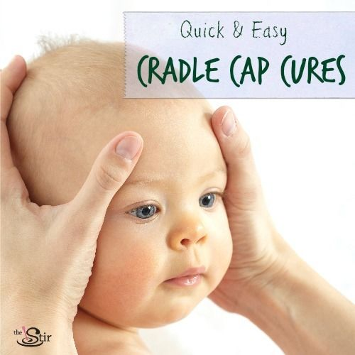 7 Natural Cradle Cap Treatments That Really Work Photos