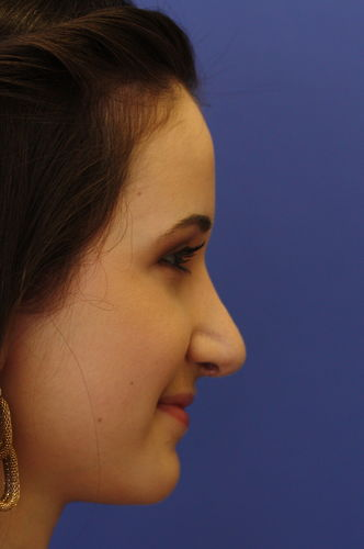 allison kramer after rhinoplasty