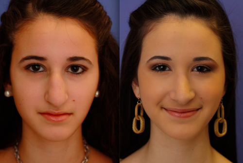 allison kramer before and after rhinoplasty