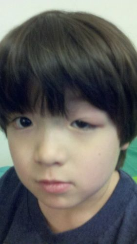 6 Ways To Stop Your Kids From Rubbing Their Eyes The Stir