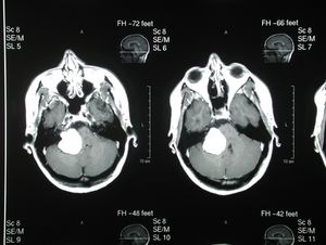 brain tumor